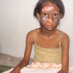 Menina cristã queimada
